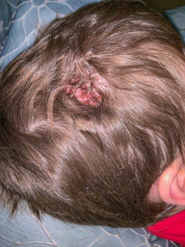 Hair Stitches IMG_4804 s