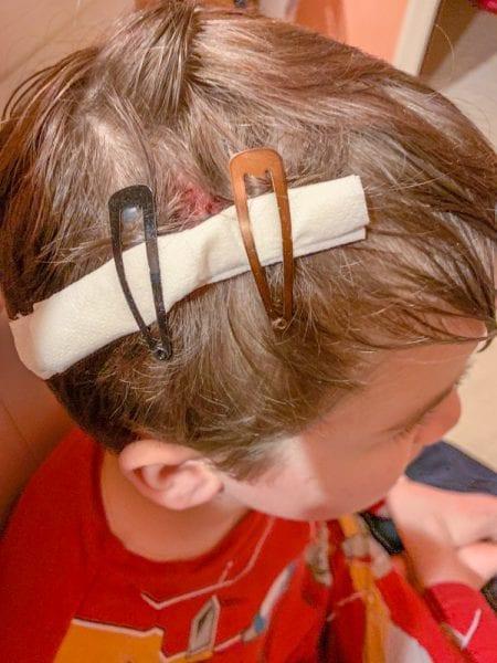 Hair Stitches IMG_4795 s