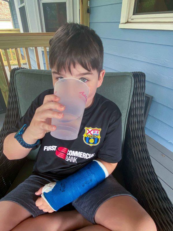 200518 noah's broken arm IMG_5473